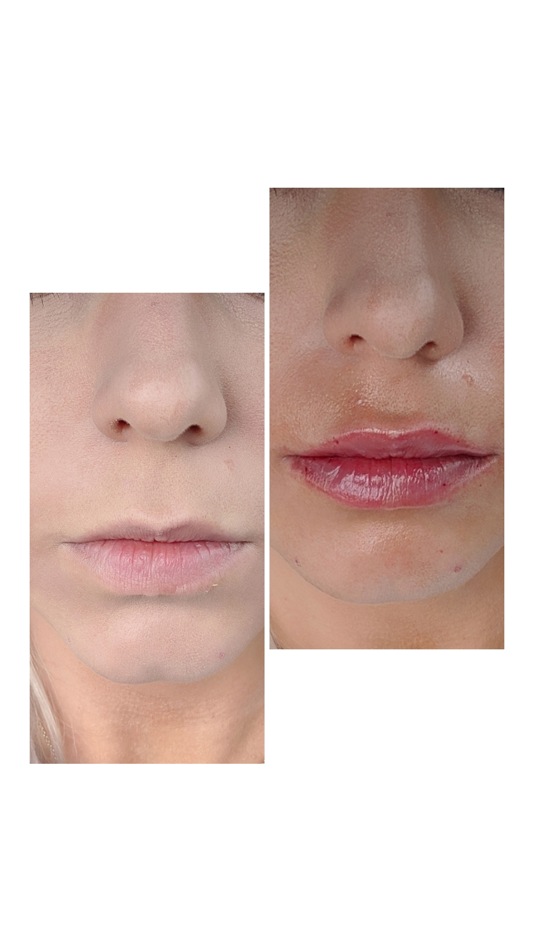 Are Lip Injections Worth It?: A before and after of lip injections using 0.5ml Restylane Defyne lip filler. Do lip injections hurt? What is getting lip injections like? And the best place for lip injections in Kansas City Olathe, Johnson County Dermatology review.